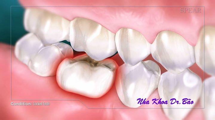 Hậu quả mất răng lâu ngày
