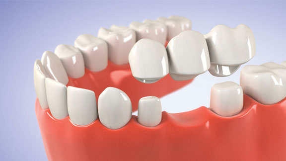 Porcelain Dental Bridge