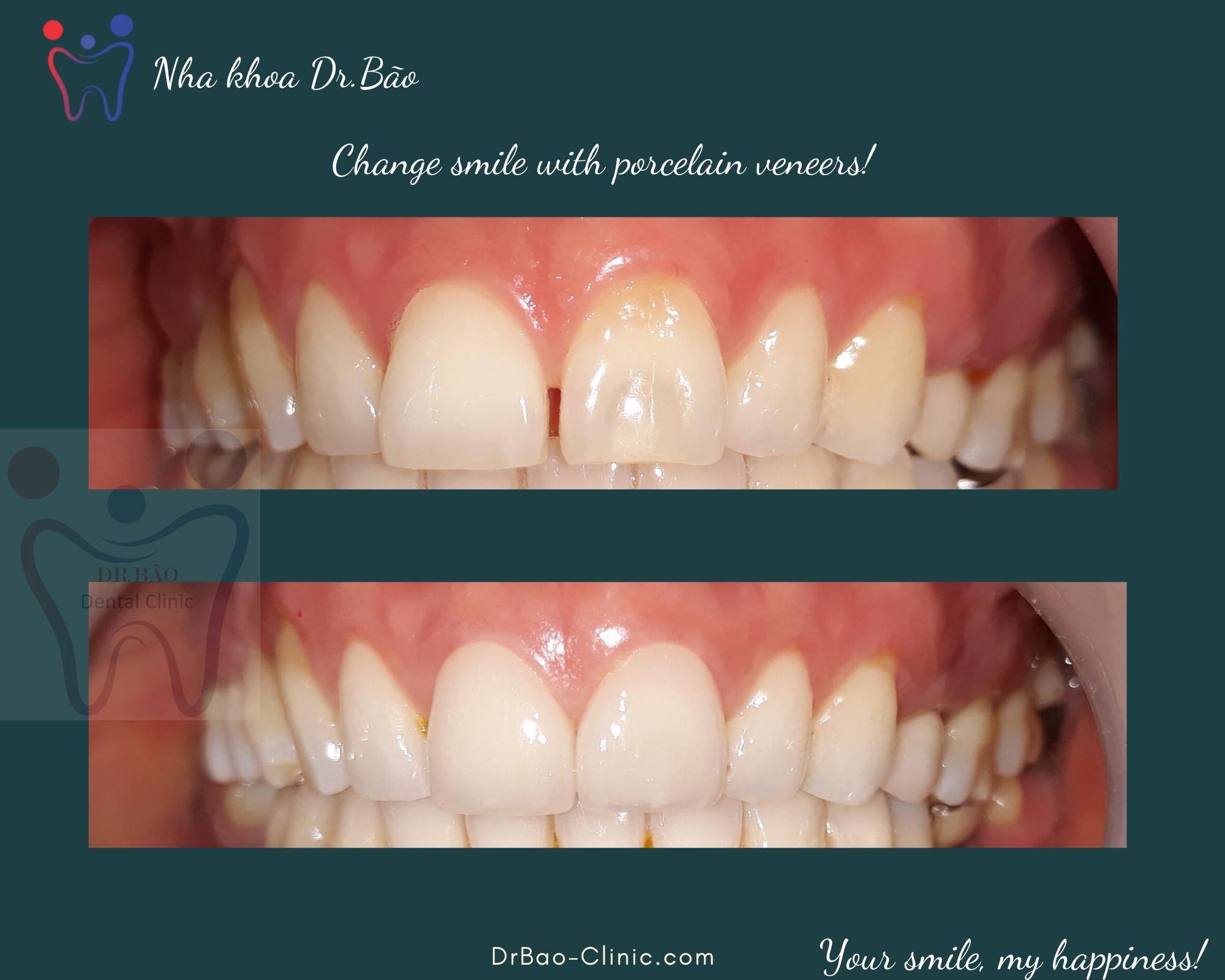 (Tiếng Việt) Chăm sóc răng miệng sau khi làm mặt dán sứ veneer